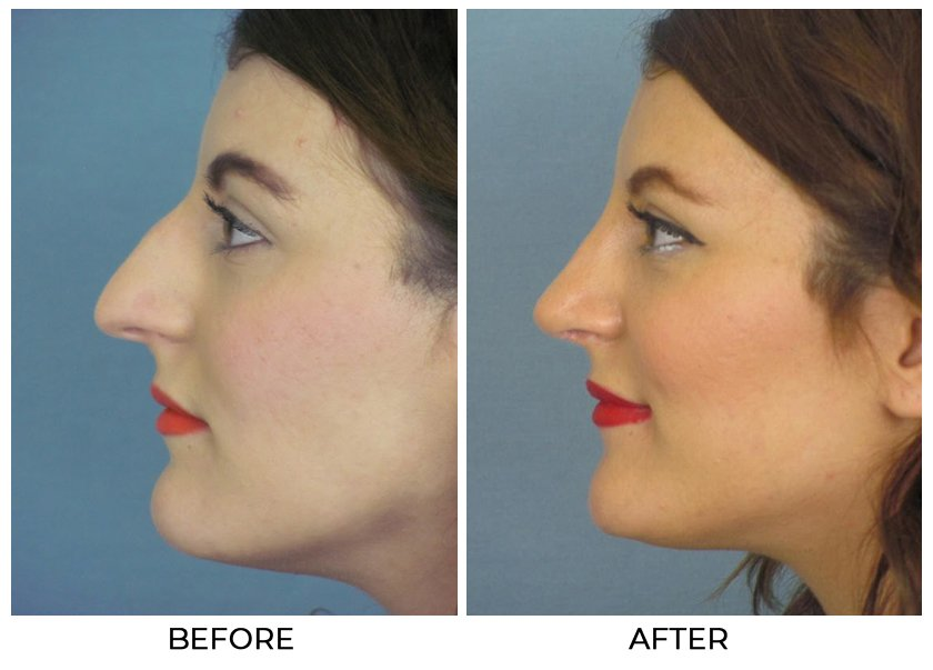 Before and After Treatment Photos - Cosmetic Rhinoplasty - left side view, female patient 1