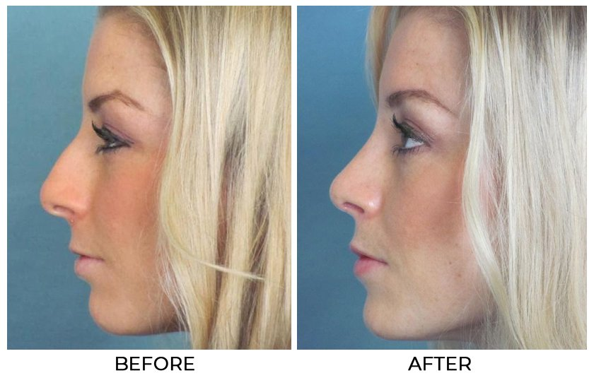 Before and After Treatment Photos - Cosmetic Rhinoplasty - left side view, female patient 2