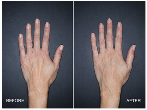Restylane Lyft for the hands - Before and After Treatment Photos - female patient 1, hands