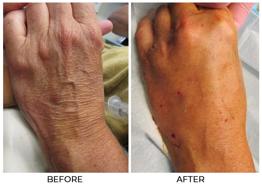 Restylane Lyft for the hands - Before and After Treatment Photos - female patient 2, hands