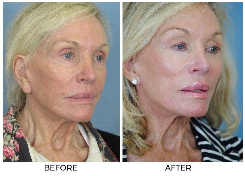 Before and After Treatment photo - CHARLESTON FACIAL PLASTIC SURGERY - female patient, oblique view