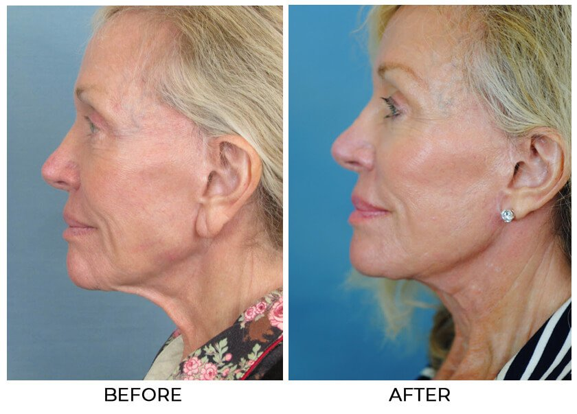 Before and After Treatment photo - CHARLESTON FACIAL PLASTIC SURGERY - female patient, left side view